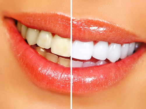 The importance of finding the right teeth whitening product or you is exactly the reason you should take your concerns to a qualified cosmetic dentist in Buffalo New York.
