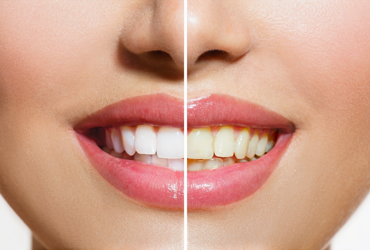 Tooth Whitening Buffalo, NY | Cosmetic Dentist Depew