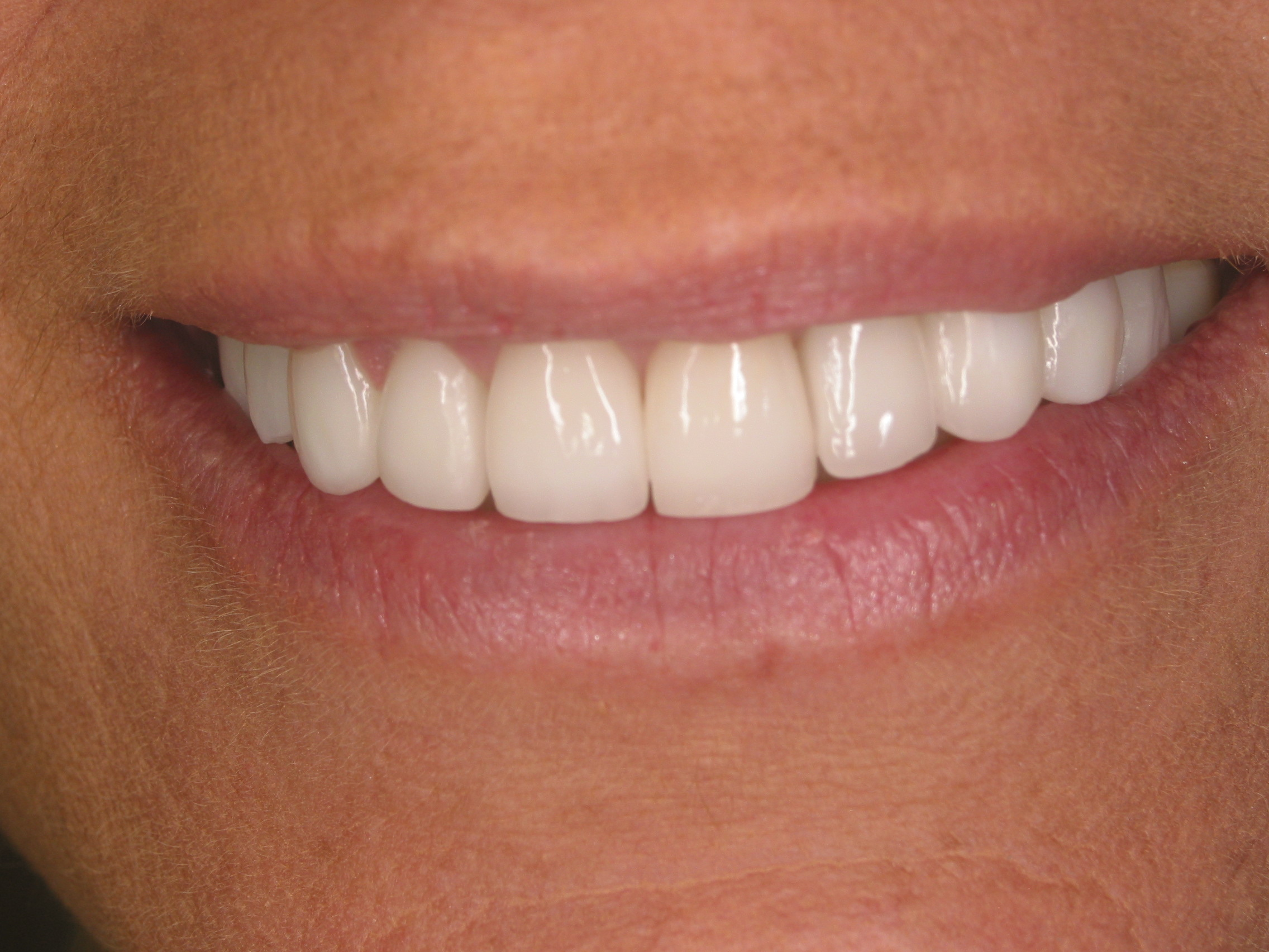 Smile Makeover - After - Forestream Dental, Dr. Larry Evola