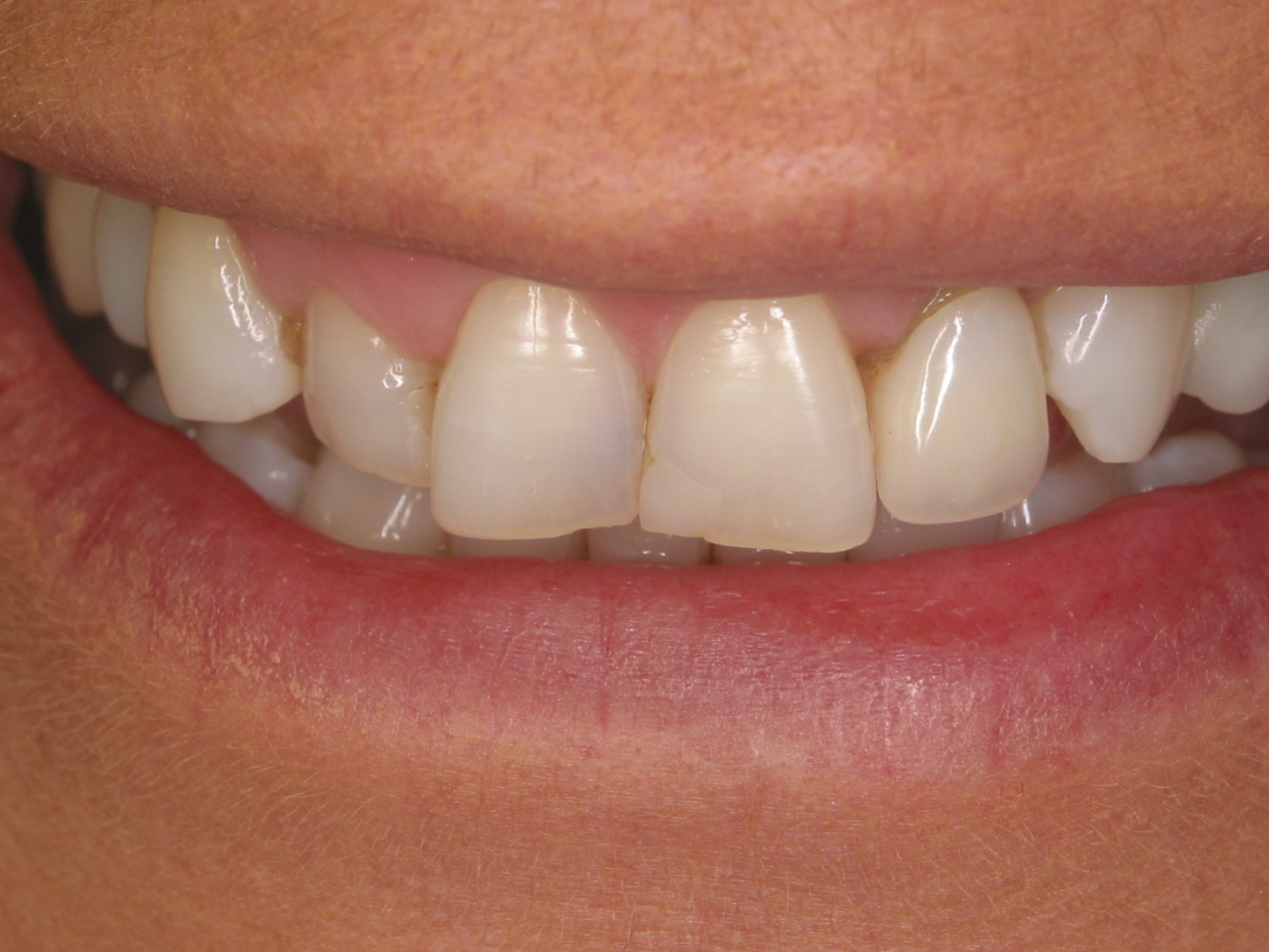 Smile Makeover - Before - Forestream Dental, Dr. Larry Evola