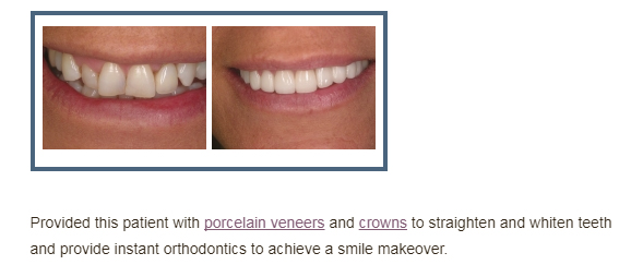 Before and After Photo of Forestream Dental Porcelain Veneer Patient
